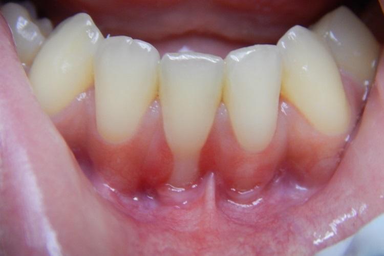 Зараз багато препаратів і методів відбілювання зубів. Від їх правильного  вибору і залежить результат. Одним з найбільш ефективних способів — це  відбілювання ... 2de0bdf61eb18