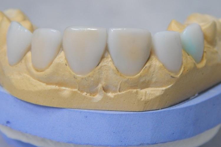 протезування - Незнімне протезування зубів