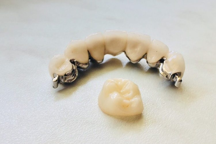0 02 04 e236103787ee2baae9bf3f46ffedfcb77e6facd3cb08b35ffd71efc925860538 full 750x500 - Non-metal crowns or crowns without metal frame