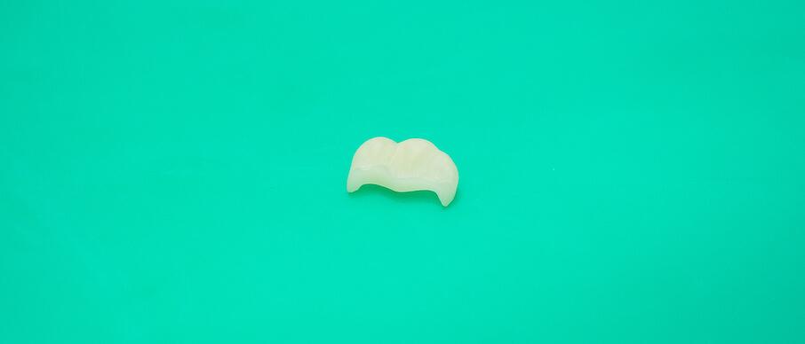 полевошпатная зубная коронка