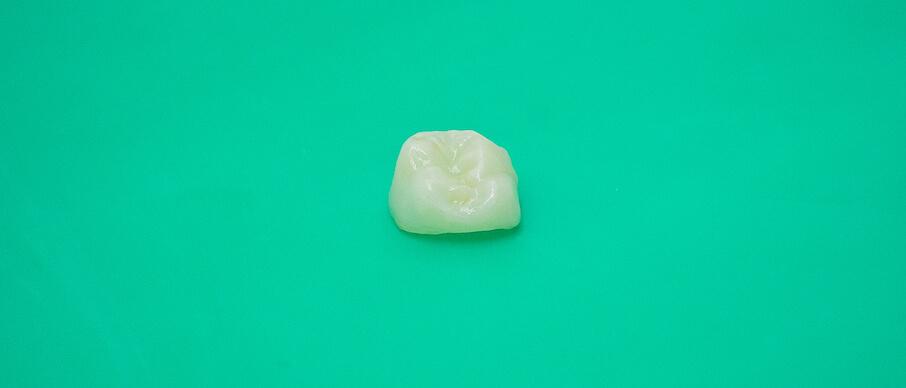 временная зубная коронка