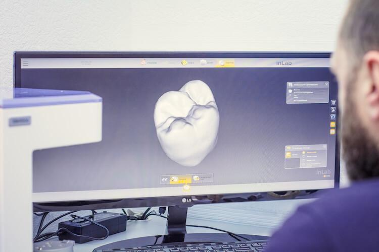 цифровое моделирование зубных коронок