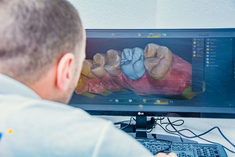 CEREC istomatolog - Преимущества системы CEREC для пациента