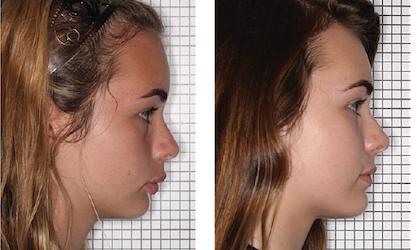 нормализация роста челюстей