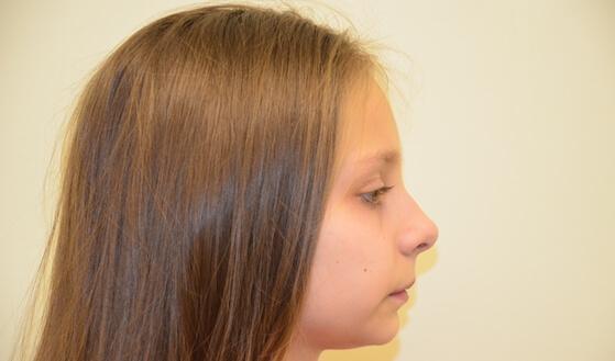 Задвинутая назад нижняя челюсть