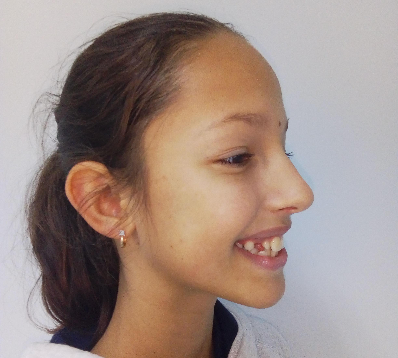 скученость зубов