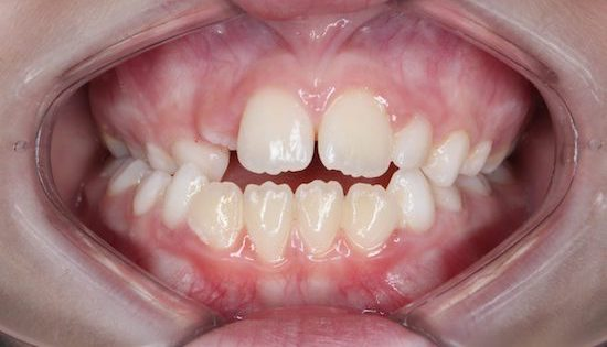 crossbite funkiness 1200x800 2 - 8 signs of impaired development of the facial skeleton in children