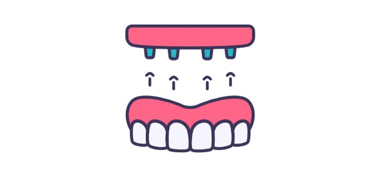 all in 4 750x341 - Знімні зубні протези