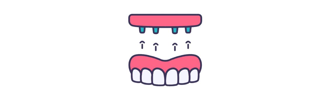 all in 4 - Імплантація при повній відсутності зубів