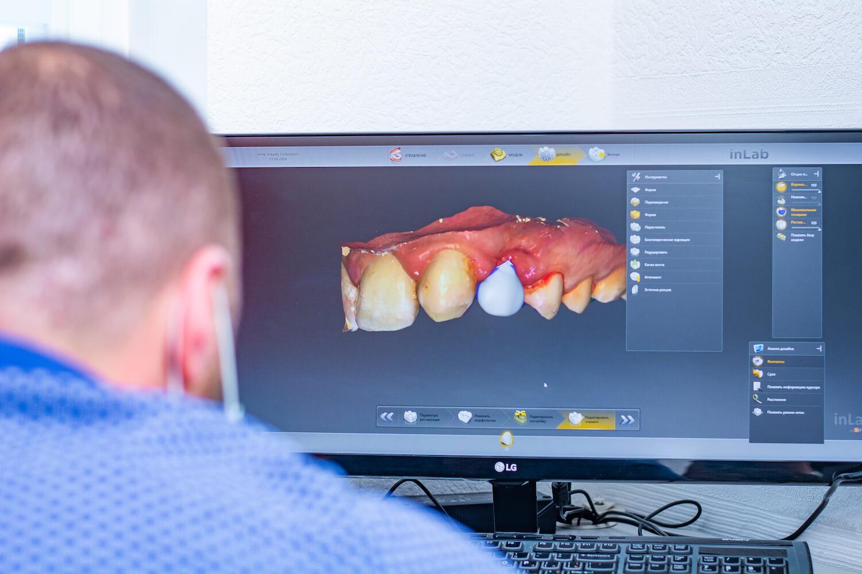 моделирование зубных коронок