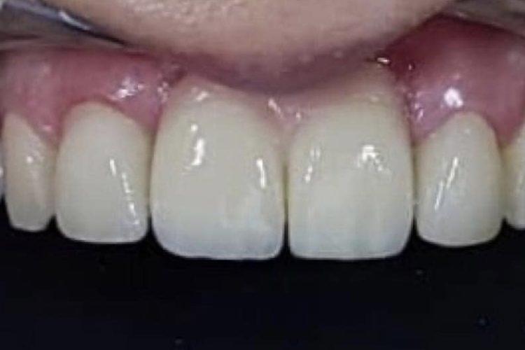 IMG 3855 750x500 - Двоетапна імплантація зубів