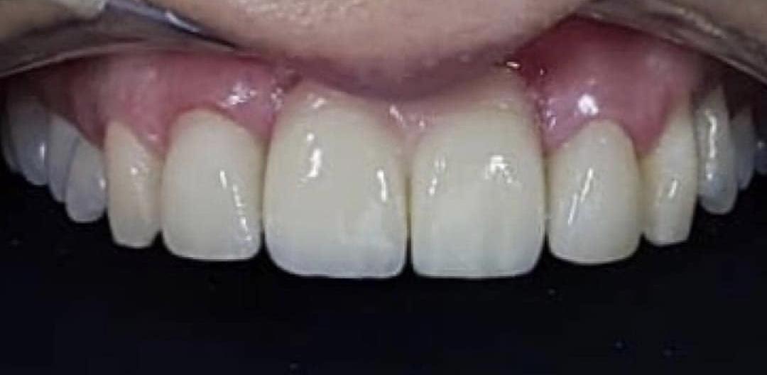 IMG 3855 - Імплантація передніх зубів