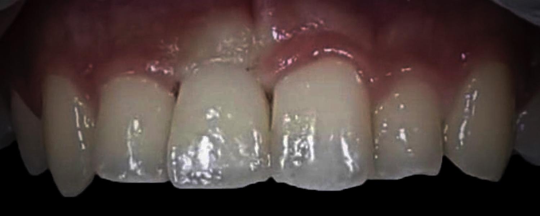 IMG 4031 - Одномоментна імплантація переднього зуба