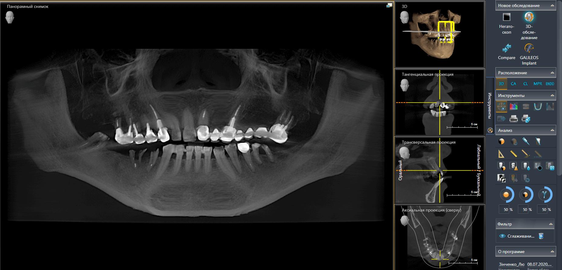 КТ до имплантации зубов