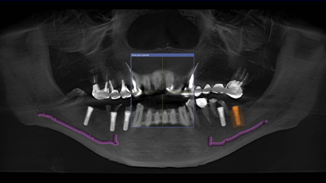 Имплантация 5 имплантов ImplantSwiss