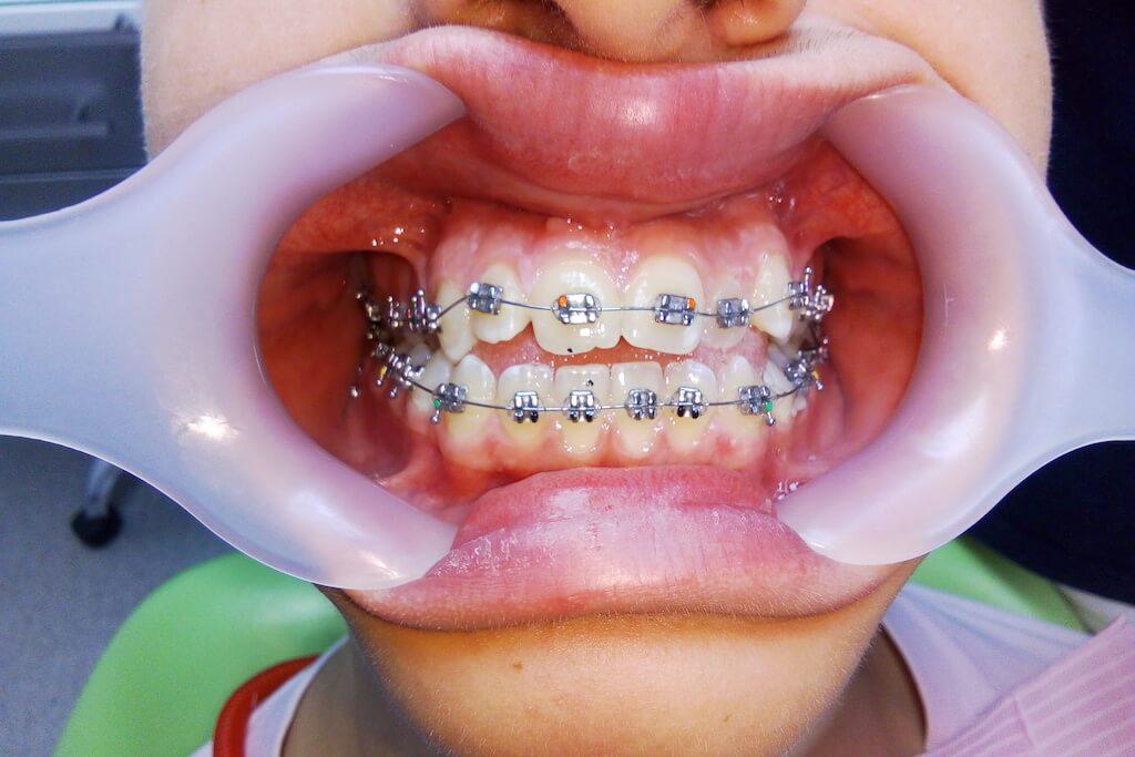 brekety - Вирівнювання зубів металевими брекетами