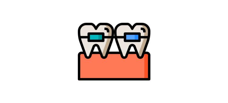 выравнивание зубов металлическими брекетами
