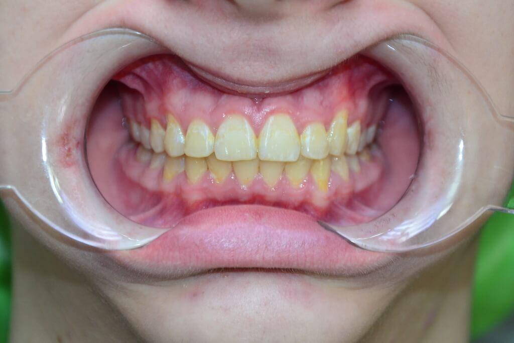 ортодонт iStomatolog