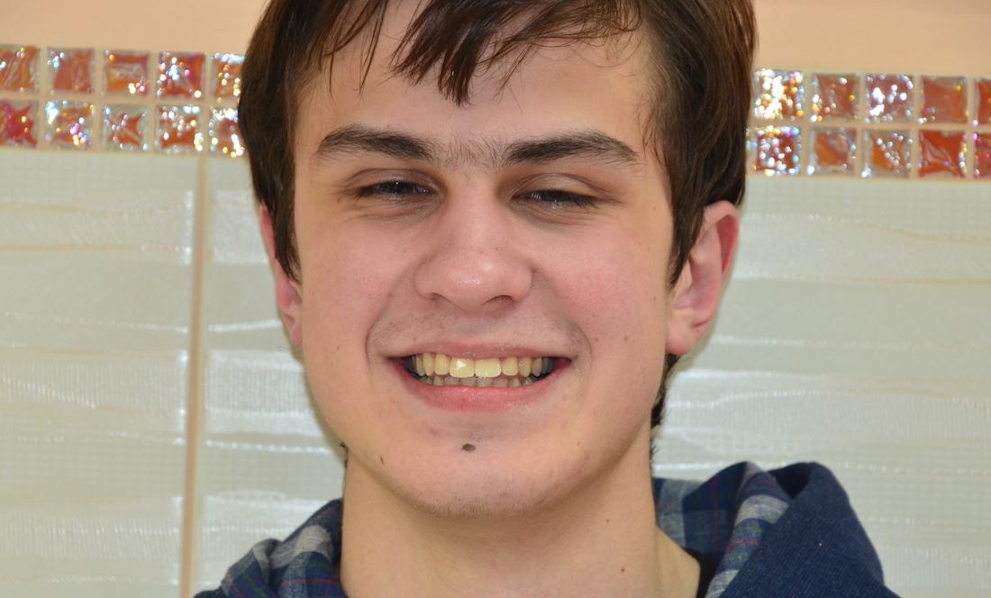 выравнивание зубов брекетами