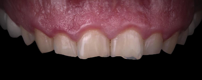 имени 1 6 - Приклади реставрації зубів