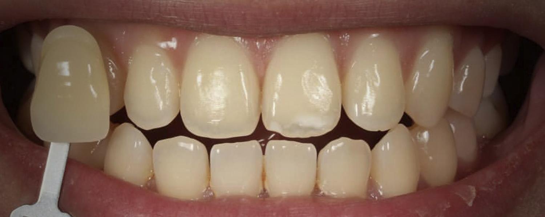 имени 1 7 - Приклади відбілювання зубів