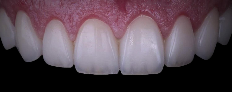 имени 2 6 - Приклади реставрації зубів