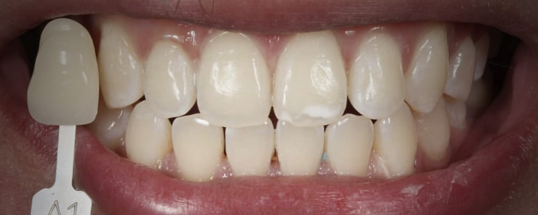 имени 2 7 - Приклади відбілювання зубів