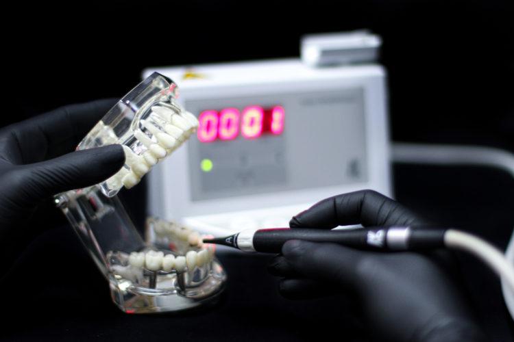 IMG 1060 750x500 - Діагностика зубів DIAGNODENT KAVO