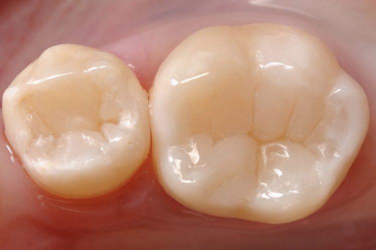 IMG 3412 750x500 - Лікування карієсу зубів