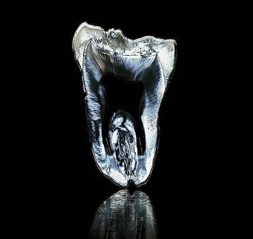 IMG 3512 2 - Естетична стоматологія