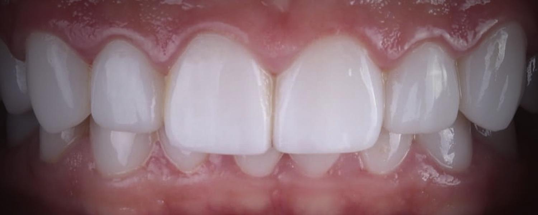 имени 1 2 - Приклади реставрації зубів