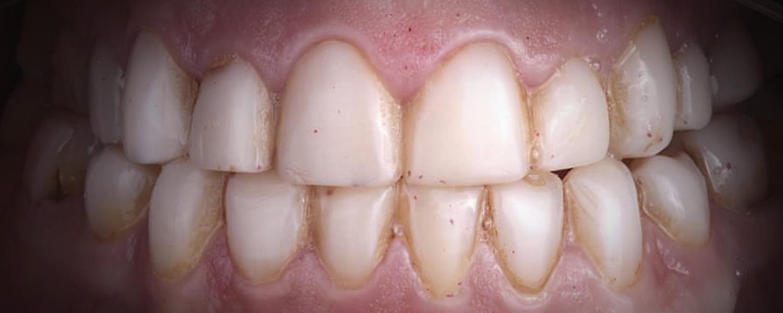 имени 1 4 - Приклади реставрації зубів