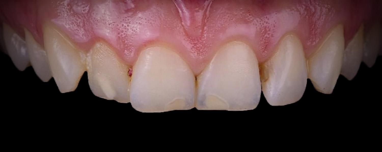 имени 1 5 - Приклади реставрації зубів