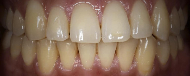имени 1 6 - Приклади відбілювання зубів