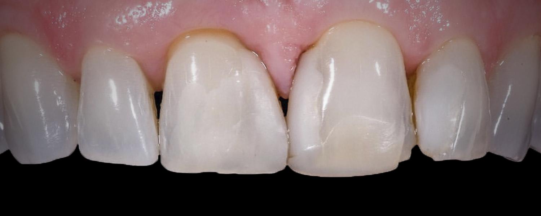 имени 1 - Приклади реставрації зубів