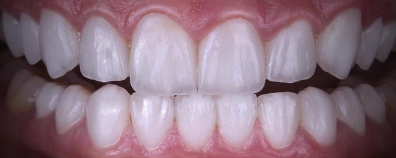 имени 2 2 - Приклади реставрації зубів