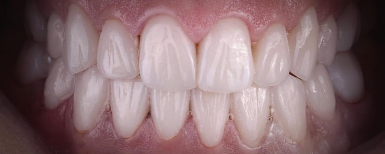имени 2 4 - Приклади реставрації зубів