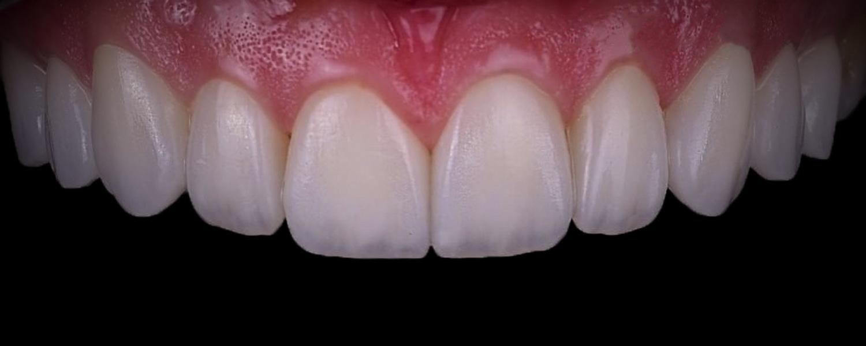 имени 2 5 - Приклади реставрації зубів