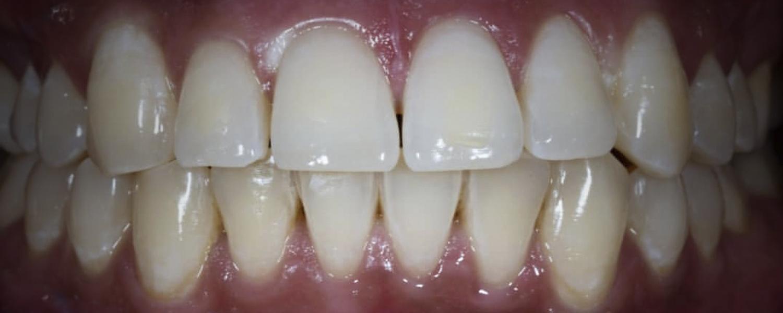 имени 2 6 - Приклади відбілювання зубів