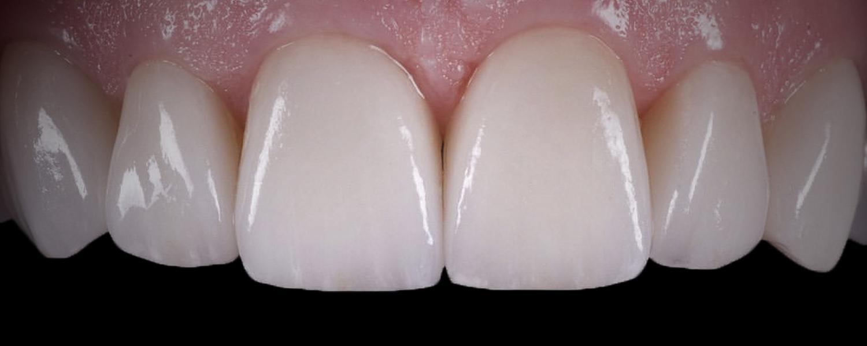 имени 2 - Приклади реставрації зубів