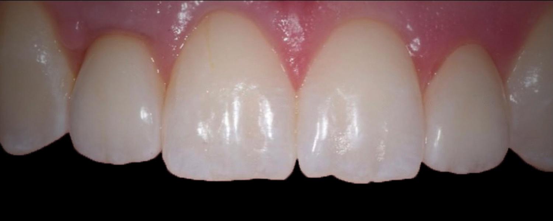 имени 3 - Приклади робіт з протезування