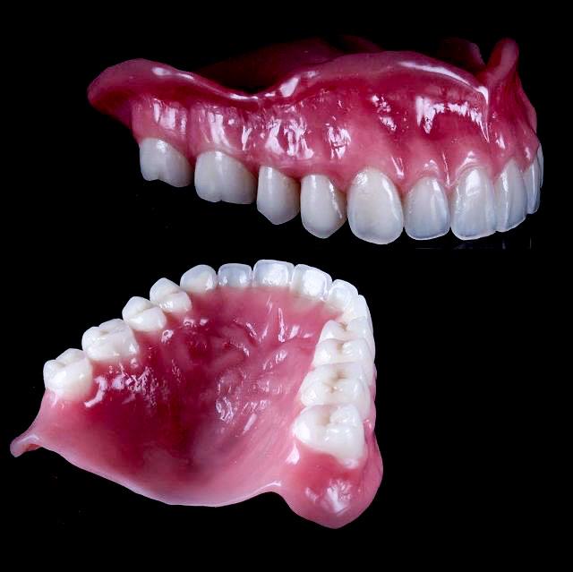 IMG 1691 - Знімні зубні протези