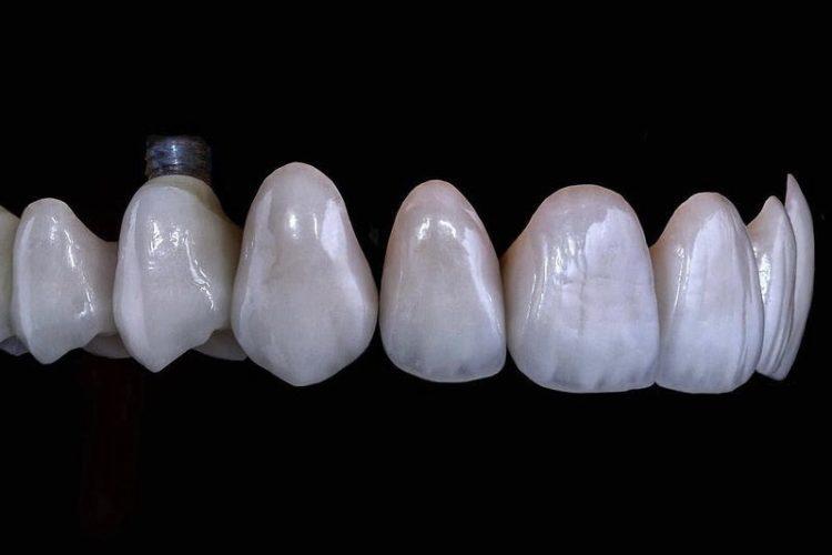 IMG 3630 750x500 - Протезування зубів