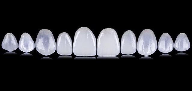 IMG 3631 - Безметалловая керамика