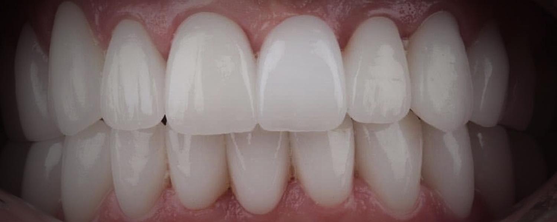 имени 1 10 - Приклади робіт з протезування