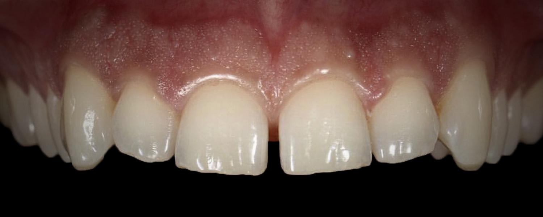 имени 1 12 - Приклади реставрації зубів