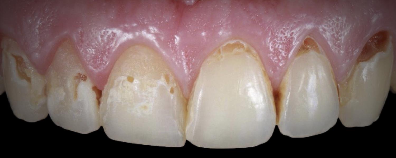 имени 1 13 - Приклади реставрації зубів