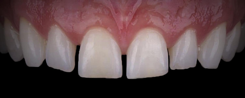 имени 1 14 - Приклади реставрації зубів