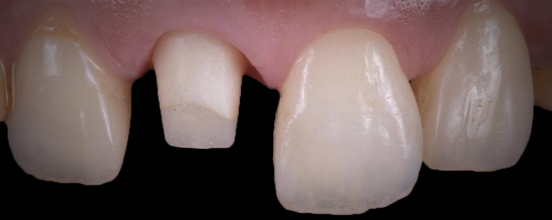 имени 1 17 - Приклади робіт з протезування