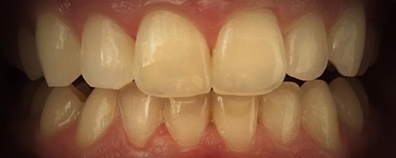 имени 1 2 - Приклади відбілювання зубів
